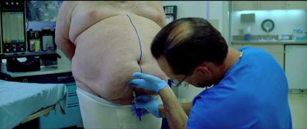 Fat Surgery